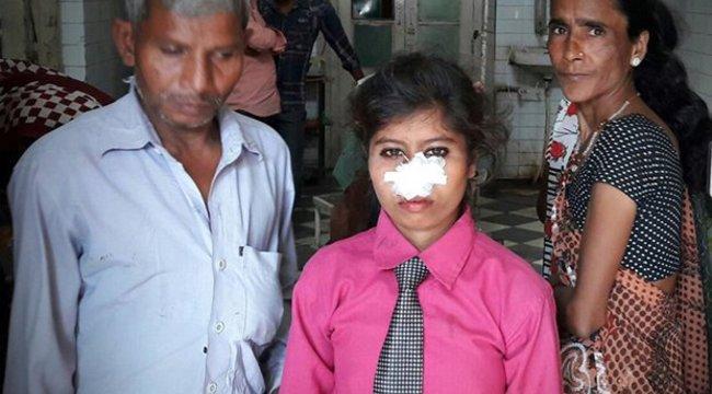 Leharapta felesége orrát, mert az nem akart neki motort venni