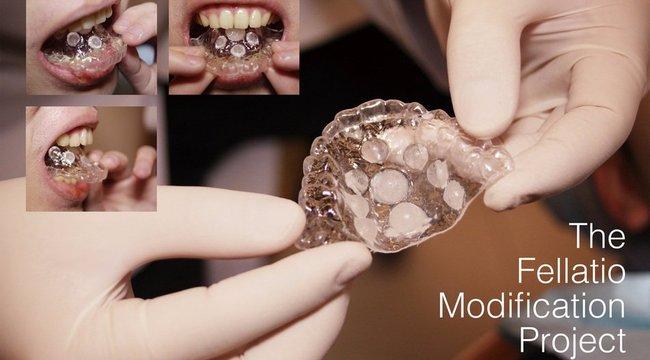 Egy fogbetét a szájba és sokkal jobb lesz az orális örömszerzés