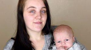 Orvosa miatt lett harmadfokú égése a csecsemőnek