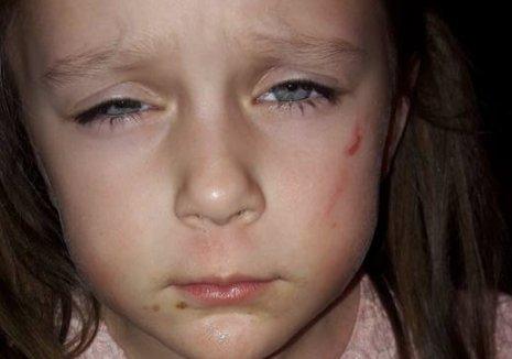 Bettina: Ököllel verték a gyerekem az oviban