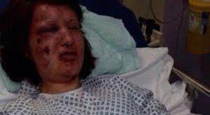 Horror: megette a lány arcát a féltékeny exbarát