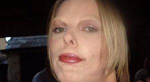 Orvosa csúfította el egy életre a nő arcát