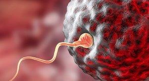 Baj van: romlott a spermium minősége