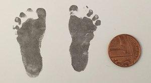 Túlélő csecsemő: születésekor kisebb volt, mint egy tábla csoki