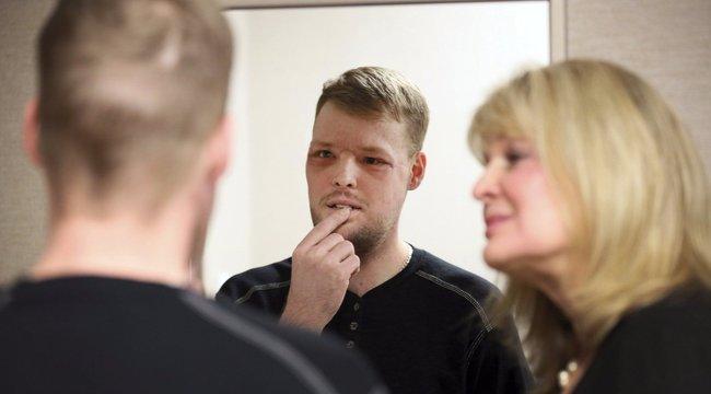 Csoda: új arcot kapott, miután fejbe lőtte magát