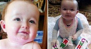 Ennek az egyévesnek még édesanyja érintése is fáj