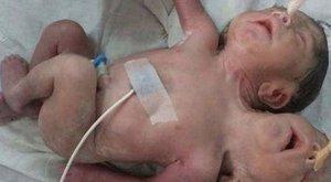 Sokkoló: két fejű, három karú sziámi ikrek születtek - videó