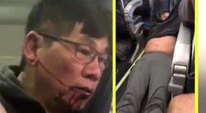 Bocsánatot kért a United Airlines vezére a véresre vert majd lecibált utastól