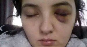 Brutálisan összetörte a szexi táncos arcát, mert az ellenkezett