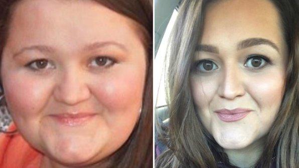 Ledobott 53 kilót a nővér, azonnal feleségül vennénk