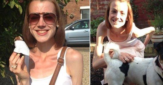 Hazaküldték az orvosok az anorexiás lányt: nem vagy elég sovány