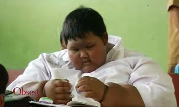Ötórás műtéttel mentettékmeg a világ legkövérebb gyermekét - videó