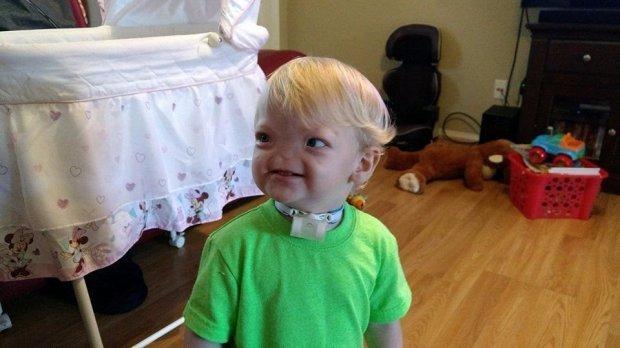 Kétévesen hunyt el az orr nélkül született kisfiú
