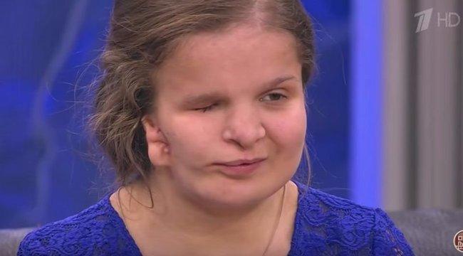 Anyja miatt plasztikáztatott a 16 éves, meghalt a műtőasztalon