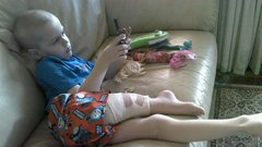 Fordítva varrták vissza az ötéves lábát - direkt