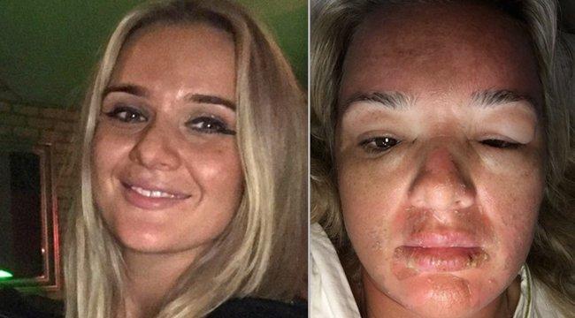 Implantátuma mérgezte a halálos betegnek hitt anyát