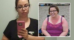 53 kilótól szabadult meg, de jobban gyűlöli most a testét, mint 140 kilósan