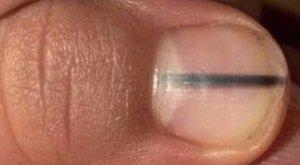 Ha fekete csíkot lát a körmén, azonnal menjen orvoshoz