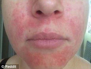 Az orvosok egy évtizedig sikertelenül próbálkoztak, ő 4 hét alatt rendbehozta a bőrét