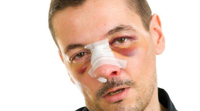 Egy orr leharapásával szerzett hírnevet magának Ausztráliában a magyar gengszter