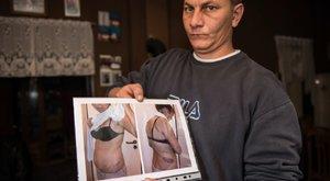 A család állítja: a gyermekotthonban verték össze a 13 éves lányt – megrázó képek