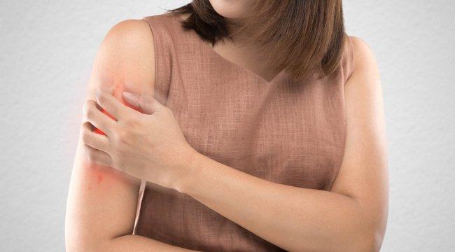 Túlélik a telet a veszélyes szúnyogok - A Bors utánajárt