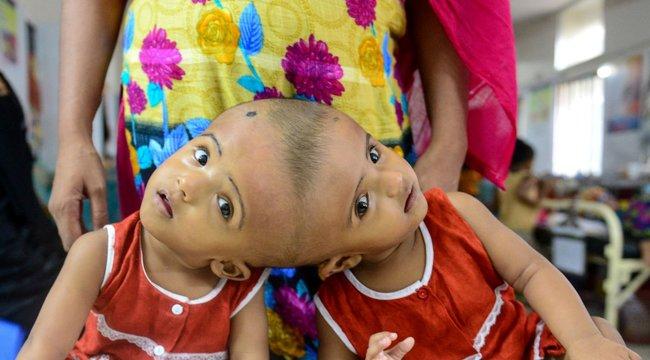 Magyar orvosok választjákszét a fejüknél összenőtt ikreket