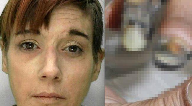 Elképesztően sanyarú halál vár a nőre, akinek csontjáig rágja a húsát a világ legveszélyesebb drogja - 18+