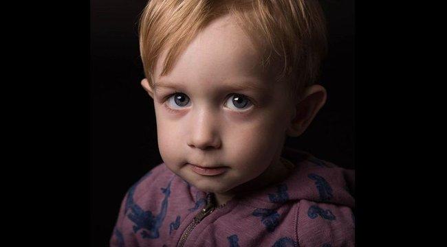 Csodálatos képeken mutatja meg a fotós a beteg gyermekek valódi szépségét - fotók