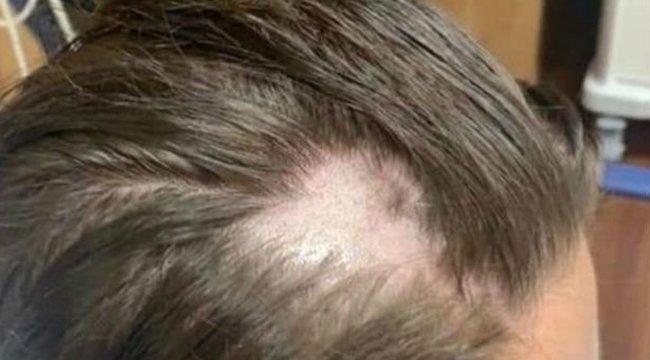 Valaki megmérgezte a samponját, a szerencsétlen tinédzserösszes hajakihullott