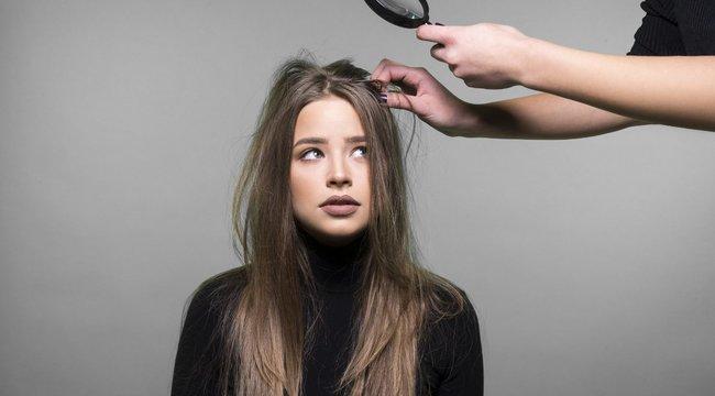 Hajgyógyász is segít, ha viszket a feje