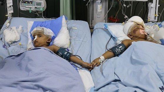 Újabb műtét vár a magyar orvosok által szétválasztott sziámi ikrek egyikére