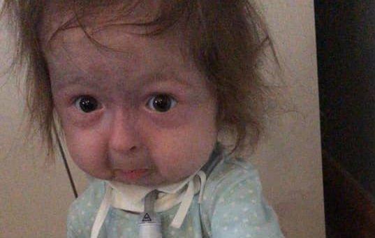 Annyira ritka betegségben szenved a kétéves, hogy rajta kívül senkit sem diagnosztizáltak még vele