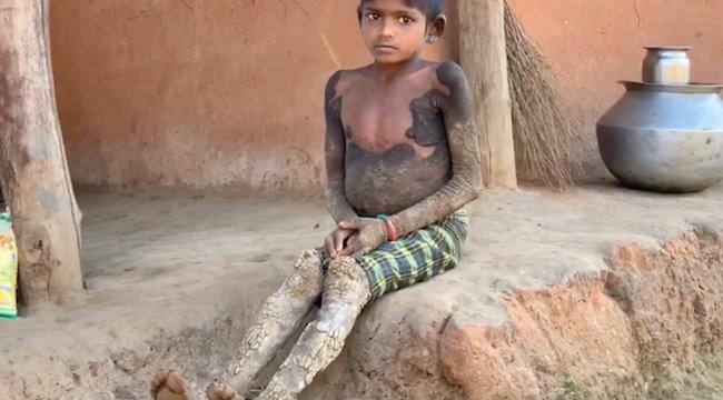 Gyógyíthatatlan betegsége miatt lassan kővé változik a hétéves kislány – videó