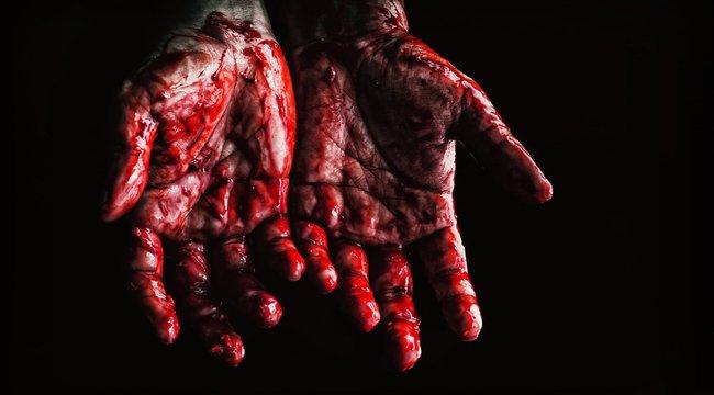 Halálos vita Miskolcon: nyakon szúrta fia éppen elvérző édesapját