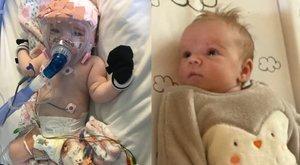 Már túlesett egy nyitott szívműtéten, most pedig a koronavírus miatt lélegeztetik a hat hónapos babát - a kis hős azonban minden erejével küzd