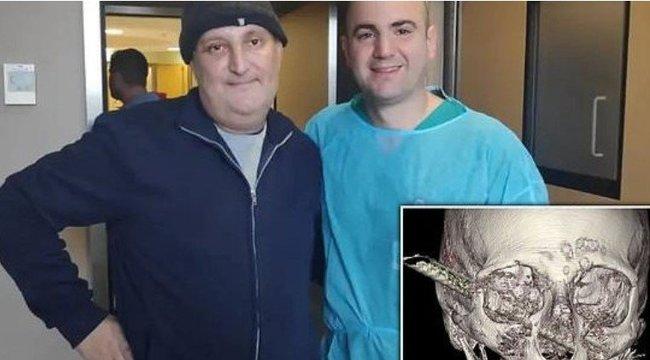 Horror: átfúrta a fejét a vasrúd, mégsem érzett fájdalmat
