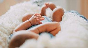 Csak születése után fedezték fel az orvosok: két szájjal az arcán született a kislány
