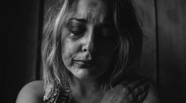 Retteg a megvakított modell: szökésben az ex-barátja, aki féltékenységből szilánkosra törte az arcát - 18+ fotó