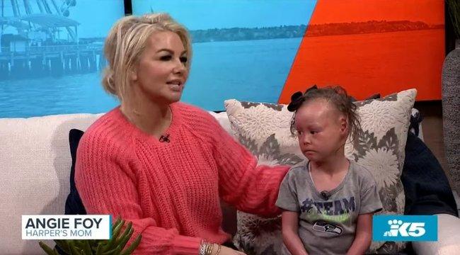 Szívszorító: csak kesztyűben ölelhették magukhoz kislányukat, akinek minden érintés kínzó fájdalom