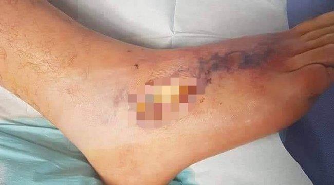 Megvágta a lábát nyaralás közben, kis híján a sírba vitte a sérülés – 18+