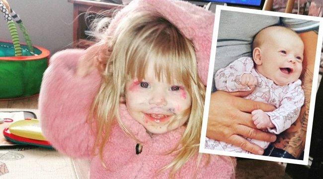 Hatszor kérték az orvosok, hogy vetesse el a babát – a fél szívvel született kislány két műtét után is mosolyog