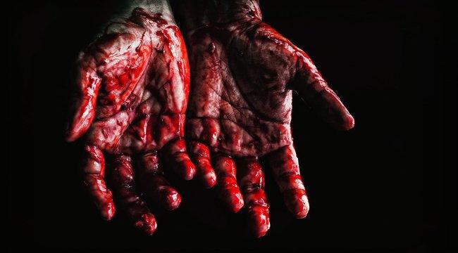 Vadászkéssel szúrta át testvére karját egy győri férfi