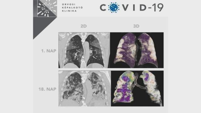 Durva fotó egy magyar kórházból: így néz ki egy tüdő, ha megtámadja a koronavírus