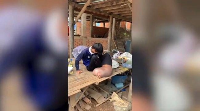 Elkapart egy szúnyogcsípést, disznó nagyságú lábbal, kínzó fájdalmakkal kénytelen leélni hátralévő életét - videó