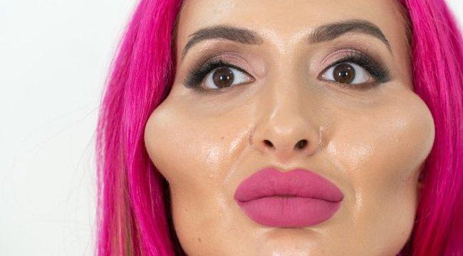 Bizarr: maga töltögeti szilikonnal az arcát az óriás orcájú ukrán modell, aki még mindig kicsinek látja a feszes puffancsokat - Videó