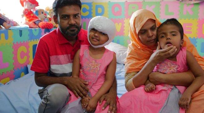 Szétválasztott bangladesi sziámi ikerpár: sürgősen meg kell műteniük a magyar orvosoknak Rabiát