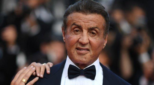 Durva fotó! Véres fejjel mesélte el Stallone, mi történt vele