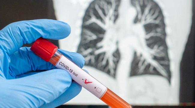 Statisztika a vírustagadók figyelmébe: ötször annyi emberrel végzett eddig a korona, mint öt év alatt az influenza Amerikában