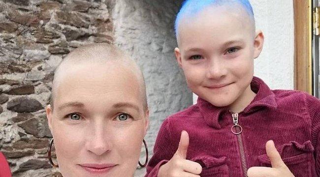 Könnyfakasztó: A koronavírus okozta stressz miatt hullott ki a tündéri kilencéves kislány haja